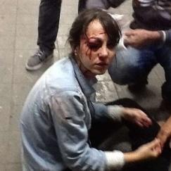 Jornalista da TV Folha atingida por bala de borracha disparada pela PM